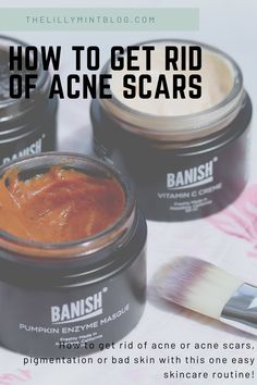 How to get rid of acne scars as well as reducing hyperpigmentation on the skin. I share all of my tips for fresh, smooth and glowy skin, and how I removed pigmentation Pumpkin Enzyme Mask, Vitamin C Cream, Congested Skin, Beauty Elixir, Glowy Skin, How To Get Rid Of Acne, Acne Scars, Natural Skin Care, Collagen