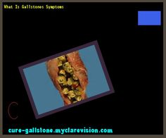 What Is Gallstones Symptoms 145941 - Cure Gallstone