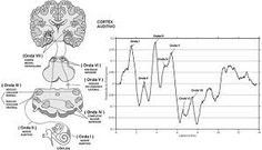 Automated Auditory Brainstem Response test (AABR): This test that measures the brain's response to sound using electrodes. #hearingvocab #vocabulary #education #AABR #sound
