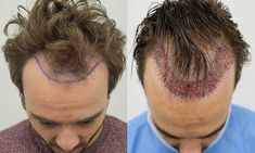 Looking for Celebrity Hair Transplant Surgeons in Mumbai? Get the best FUE hair transplant from skilled doctors at an affordable cost with assured results Hair Transplant Surgery, Best Hair Transplant, Celebrity Hairstyles, Cool Hairstyles, New Hair, Your Hair, 3 Day Cardiac Diet, Hair Loss Clinic, Male Pattern Baldness