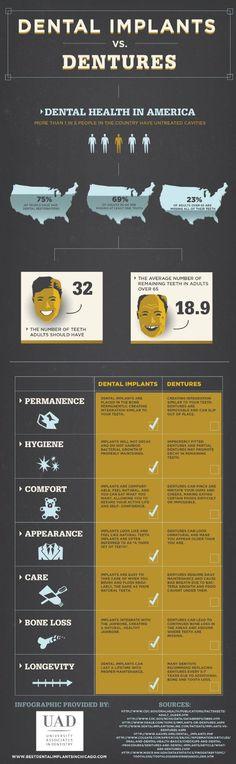 Dental Implants vs Dentures[INFOGRAPHIC]