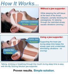 An Effective Anti-Snoring Solution | My Snoring Solution