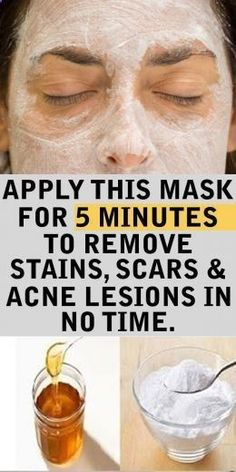 DIY Homemade Face Masks For Glowing Skin and Acne - Splash Colours Health Tips For Women, Health And Beauty, Baking Soda And Honey, Baking Soda Scrub, Beauty Tips With Baking Soda, Baking Soda For Skin, Beauty Tips With Honey, Baking Soda Health, Skin Treatments
