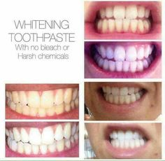 Our whitening toothpaste is our best seller for a reason ...