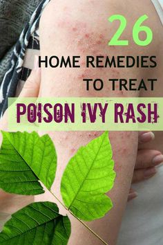 26 Home Remedies to Get Rid of Poison Ivy