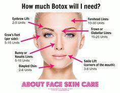 The average amount of Botox units needed, per facial area. #Botox