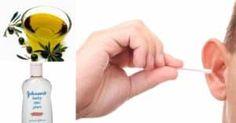 Ouvidos entupidos por cera? Desentupa-os rapidamente com este eficaz remédio caseiro!