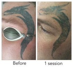 Patch test done on this one :-) #newskin #wrexham #tattooremoval ...