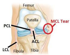 An MCL tear is a common knee injury causing inner knee pain. Find out about the main causes of MCL injury including symptoms & treatment options. Knee Ligaments, Ligament Tear, Ligament Injury, Knee Injury, Torn Ligament In Knee, Rheumatoid Arthritis Treatment, Knee Arthritis, Common Knee Injuries
