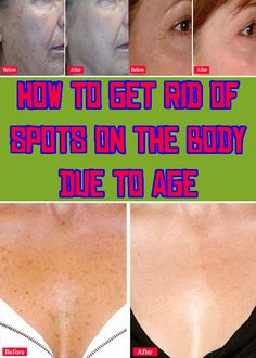 How to get rid of spots on the body due to age