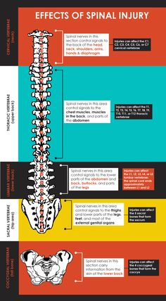 Spinal Cord Injuries Globally: Infographic Glance ~ Neuro and Spine Surgery In India