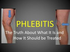 Phlebitis The Truth About the Causes and Treatment (Full Length). Phlebitis is not a trivial condition, it can be serious and may cause a Deep Vein Thrombosis. Everyone with phlebitis should have a duplex ultrasound scan to confirm the correct diagnosis, to check for DVT and to guide the correct treatment.