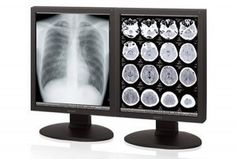 3MP Grayscale SONY LMD-DM30 Radiology Display