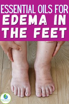 If you are looking for swollen feet remedies or how to get rid of edema in the feet and ankles, then you may find these essential oils for swollen feet and ankles helpful for reducing foot and leg edema or water retention.