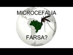 COLOMBIA NÃO RESGITRA NENHUM CASO DE MICROCEFALIA LIGADO AO ZIKA