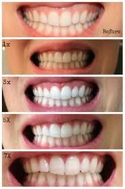 As smokers and coffee lovers people may search for different modalities of whitening their teeth. One method is efficient and that's activated charcoal! Teeth Whitening Remedies, Charcoal Teeth Whitening, Natural Teeth Whitening, Whitening Kit, Activated Charcoal Teeth, Diy Charcoal Mask, Charcoal Mask Benefits, Beauty Hacks For Teens, Teeth Bleaching