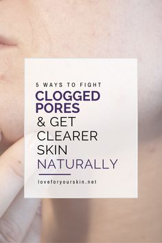 Looking for ways to fight acne and clear up breakouts. Here are 5 simple ways to fight clogged pores.