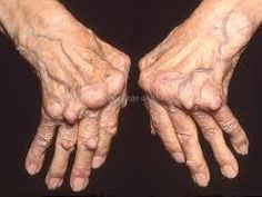At Last! Natural Arthritis Cure Discovered...