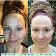 "CLEAN. SLATE. Shelby didn't have terrible skin to start with, but check out her amazing results! These products are for everyone! ""So this is absolutely terrifying and completely out of my comfort zone but I am so overly impressed with my 90 day results that I have to share...Rodan + Fields products have completely transformed my skin! I mean WOW!!! Our REVERSE & REDEFINE regimens paired with the AMP MD roller--AMAZING!!"""