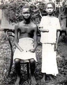 """Fotoğraftaki adam, kendisi gibi köle olan ve """"yeterince kauçuk toplayamadığı için"""" cezalandırılan 5 yaşındaki kızının kesilen sol eli ve sağ ayağına bakıyor.Bir din adamı tarafından gizlice çekildi.  Peki burası neresi ve bu masum insanlar kimler?  1900′lü yılların başında, Belçika Kralı II. Leopold'un Afrika'daki sömürgelerinden biri olan Kongo…  1885 – 1908 yılları arasında hüküm süren Afrika'da ki hakimiyeti süresince 6 milyon cinayet ve sayısız işkencelerle tarihteki yerini alan Belçika…"""