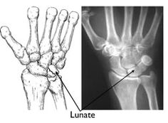 Kienböck's Disease - OrthoInfo - AAOS  Poorly understood disorder of small bone in the wrist.  Excellent website for musculoskeletal disorders.