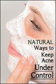 Natural Ways to Keep Acne Under Control Some of these are pretty good but what you eat doesn't really control acne.