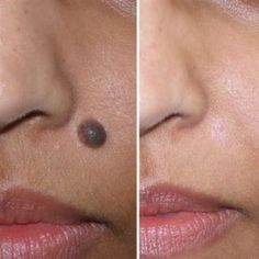 Mole removal at kashyap Skin Clinic