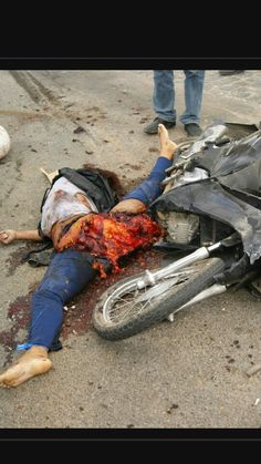 Woman in Brazil riding motorcycle hit by dump truck.