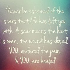 Never be ashamed of the scars that life has left you with. A scar means the hurt is over, the wound is closed, you endured the pain and you are healed.