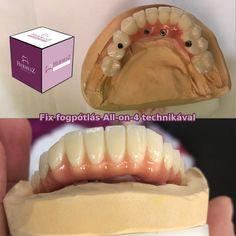 """Die All-on-4TM - Zahnimplantationstechnik beendet die durch einen herausnehmbaren Zahnersatz verursachten Unannehmlichkeiten und lässt Sie vergessen, dass Sie keine eigenen Zähne mehr haben. Und all das innerhalb eines Tages! Sofort Sorgend! In der Zahnarztordination """"Hermesz Dental"""" verwirklichen wir all das schmerzfrei, mit dieser neuartigen Implantationstechnik.Wenn Sie auch danach noch Fragen haben, kontaktieren Sie uns bitte über die angegebenen Erreichbarkeiten! +36202320080… Hot Dog Buns, Hot Dogs, Dental, Bread, Food, Local Dentist Office, Left Out, You're Welcome, Brot"""