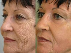 A deep chemical peel might be the right choice if you have deeper facial wrinkles, skin that's damaged by the sun, scars, areas that appear blotchy or even pre-cancerous growths. Vicks Vaporub, Creme Anti Rides, Lose 15 Pounds, Eye Wrinkle, Chemical Peel, Les Rides, Reality Tv Shows, Wrinkle Remover, Grow Hair
