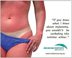 If you knew what I knew about #melanoma, you wouldn't be sunbaking this summer either. Please stay safe in the sun, and remember there is no such thing as a healthy tan.