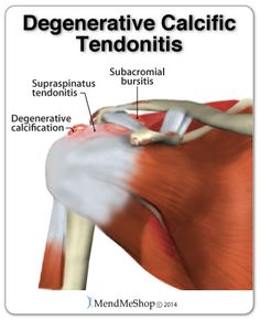 Aging of tissue (degeneration of bone, tendon and bursae in the area) can cause degenerative calcification.