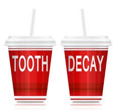 """**Soda Encourages Tooth Decay**  """"Sip All Day, Get Decay"""" is more than a catchy slogan. It's a campaign with the purpose to bring awareness to the nation's growing dental concerns and correlation between soda and tooth decay.  Read more about how the increasing amount of sugar we drink on a daily basis, and the link with soda and tooth decay"""