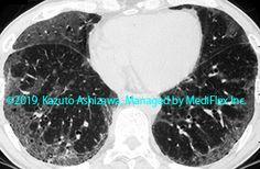 10. 間質性肺炎 症例092:剥離性間質性肺炎 CT,『コンパクトX線アトラスBasic 胸部単純X線写真アトラス vol.1 肺』 Radiology