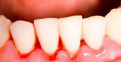Diş etlerimiz neden kanar? Diş eti kanaması nasıl önlenir? Yrd. Doç. Dr. Cenker Koyuncuoğlu diş eti kanamalarının nedenlerine ve tedavisine değindi.