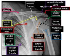 acromioclavicular joint shoulder x ray Radiology Schools, Radiology Student, Radiology Imaging, Medical Imaging, Medical Coding, Medical Science, Radiologic Technology, Nursing School Notes, Medical Anatomy