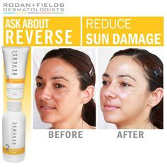 REVERSE:  Rodan and Fields is life changing! Contact me at lisa.dion@live.com