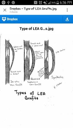 Types of LEA grafts