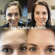 Sarah has been using our Redefine Regimen for almost 4 months now but recently decided to add in the Amp MD Roller to tackle her stubborn forehead wrinkles! These are her results AFTER ONLY 5 NIGHTS of using the Amp MD Roller!