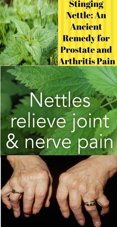 Nettle for healthy prostate and painful joints stinging nettle benefits stinging nettle side effects stinging nettle supplement nettle for hair stinging nettle allergies stinging nettle root benefits how to make nettle tea nettle tea benefits for hair Holistic Remedies, Natural Health Remedies, Nettle Tea Benefits, Health Benefits, Painful Joints, Home Remedies For Warts, Herbal Medicine, Holistic Medicine, Salud