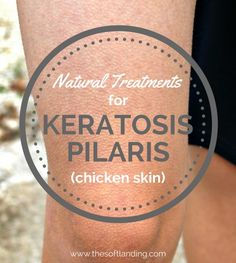 How To Treat Solar Keratosis Naturally