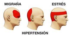 Como aliviar el dolor de cabeza en 5 minutos sin medicamentos ni pastillas