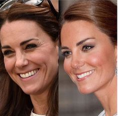Here is an example of how Botox and fillers can help you age backwards and still look natural. In the left image, from Kate Middleton's crows feet, forehead wrinkles, and undereye hollows have aged her face. Cheek Fillers, Botox Fillers, Dermal Fillers, Botox Forehead, Botox Face, Under Eye Hollows, Botox Brow Lift, Botox Before And After, Rhinoplasty Before And After