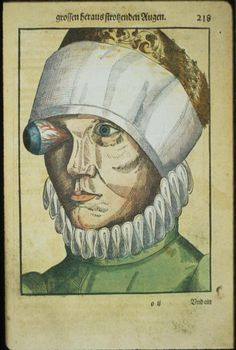 """41 Strange on Twitter: """"""""Ophthalmodouleia"""" is the first Renaissance manuscript on ophthalmic disorders and eye surgery published in 1583 by German physician  Georg Bartisch… https://t.co/bQC9wjK4BX"""""""