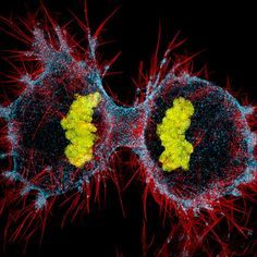 Human HeLa cell undergoing cell division