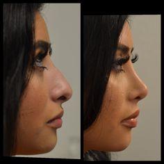 Perfect Nose, Rhinoplasty, Pearl Earrings, Jewelry, Pearl Studs, Jewlery, Jewerly, Schmuck, Jewels