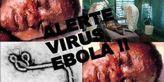 To learn more about the deadly ibola virus (Part- 2)