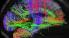 BBC News - Scans reveal intricate brain wiring: Scientists are set to release the first batch of data from a project designed to create the first map of the human brain.    The project could help shed light on why some people are naturally scientific, musical or artistic.