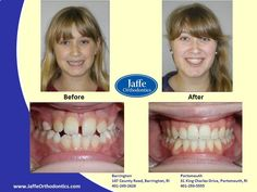 Kristen Orthodontics, Portsmouth, King Charles, Photos, Pictures, Cake Smash Pictures